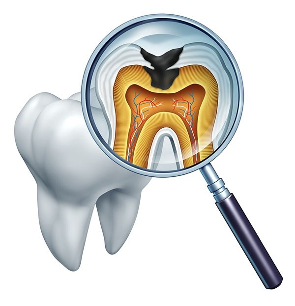 Root Canal Wilmington, NC   Salling & Tate Dentistry