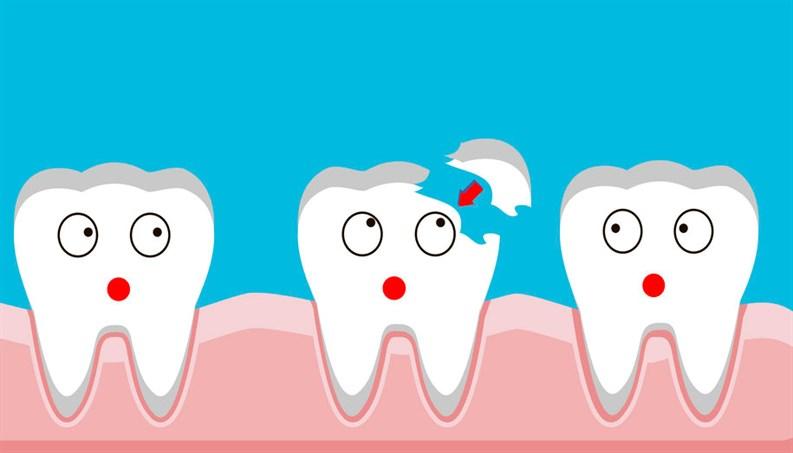 fix cracked tooth wilmington nc